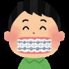 子どもの歯茎が見える!ガミースマイルは矯正が必要??